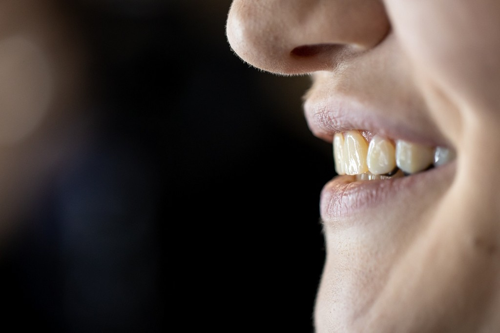 metamorfoza uśmiechu DentalScan