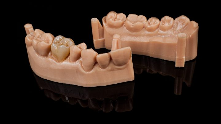 Endokorona | Ceramika e.max